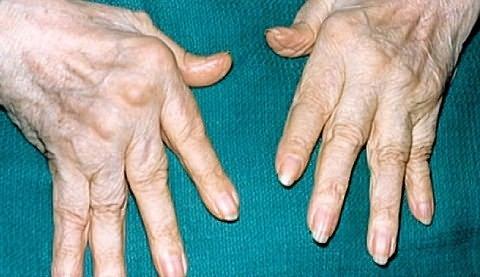 fájdalmak a kis ujjak ízületeiben)
