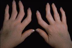 ízületek reumatikus polyarthritis kezelése