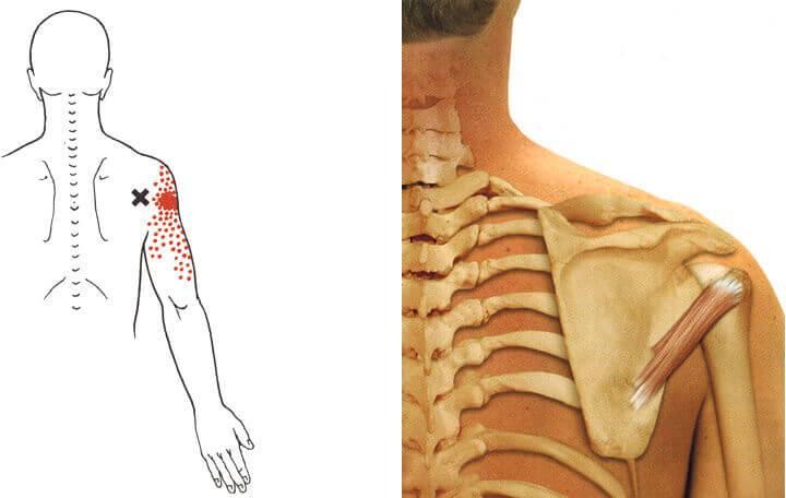 Miért van a fájdalom a bal váll és a lapocka a karjára?