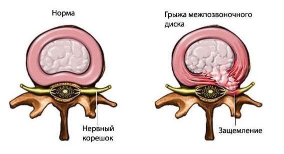 aleksejev izmok ízületei szalagjai osteochondrozis betegségei)