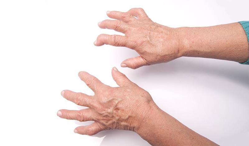 fájdalom és nehézség a kéz ízületeiben)