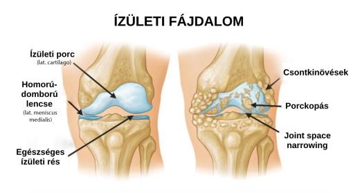 ízületi fájdalom és kötőszöveti diszplázia)