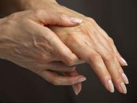 artrózis kezelése bicillin-5-el