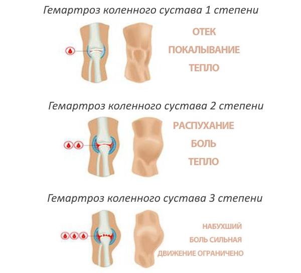 fájdalom a csípőízületben nyújtás után ízületek ízületi gyulladása diagnózis