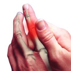 az ujjak rheumatoid arthrosisának kezelése)