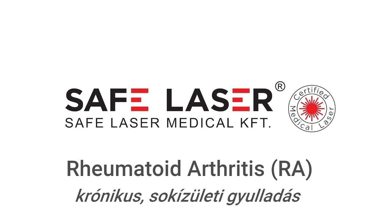 arthrosis magyar kezelés)