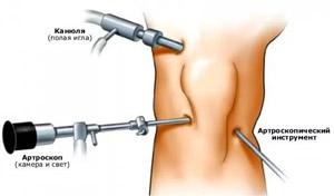 doa ízületi kezelés 2. fokozat csukló artrózis 1 fok 2