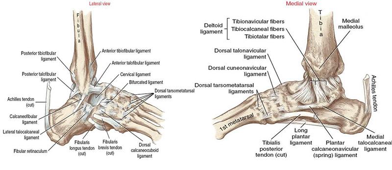 az 1. fokú talaris navikális ízület deformáló artrózisa