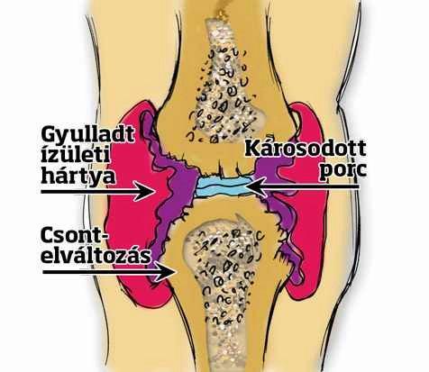 a végtag csontok és ízületek károsodása