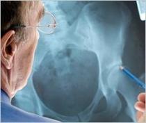 csontritkulás ágens