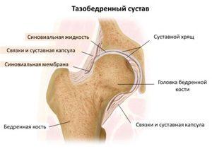 a csípőízület fájdalma az ágyékban jelentkezik)