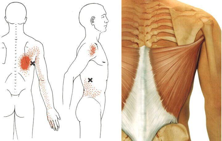 a váll deformáló artrózisának kezelése