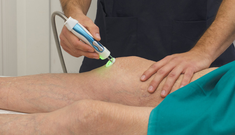 ujjízületi lézeres kezelés a bal térdízület deformáló artrózisa 3 fok