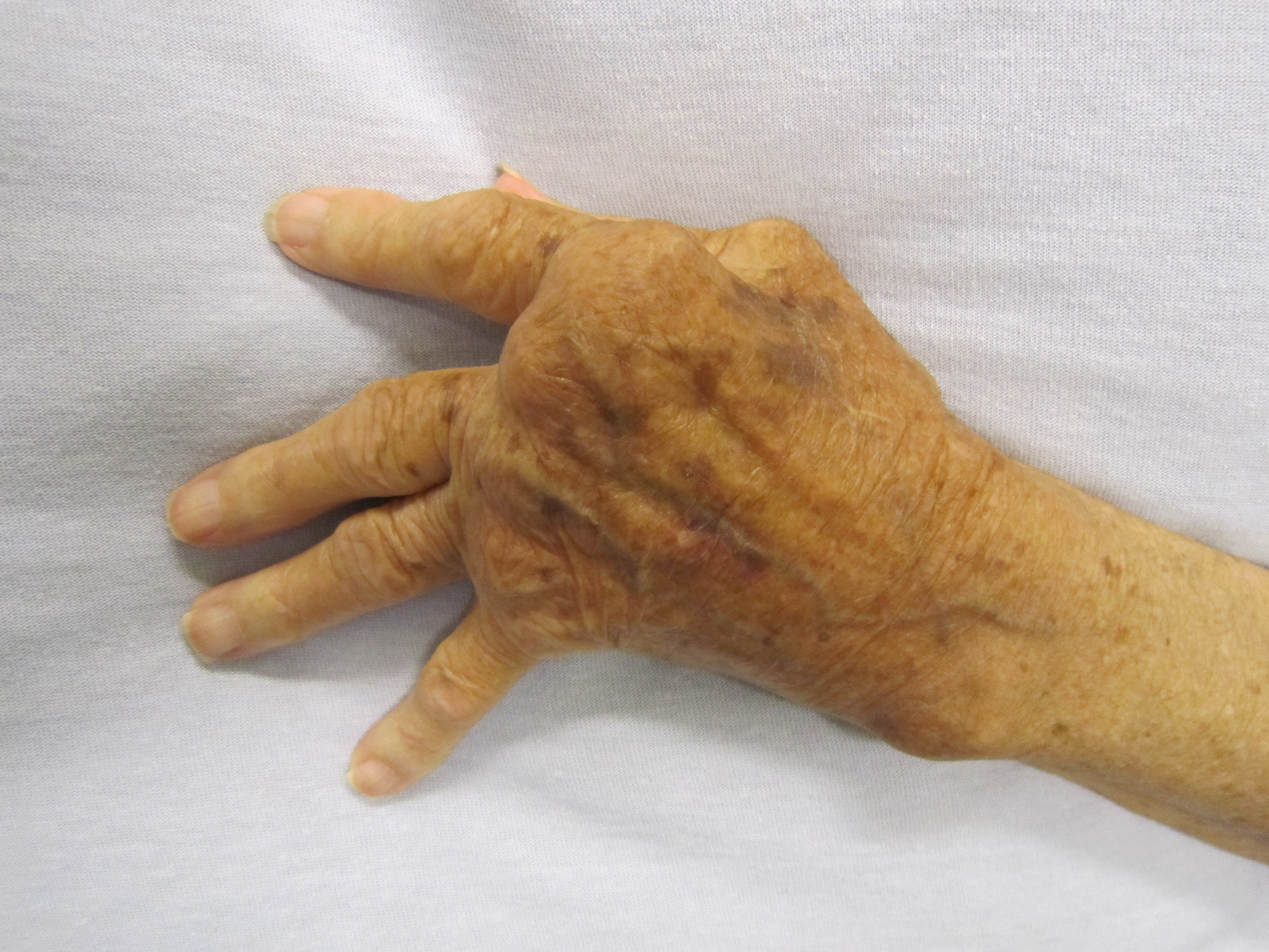 a jobb kéz középső ujjának ízülete fáj