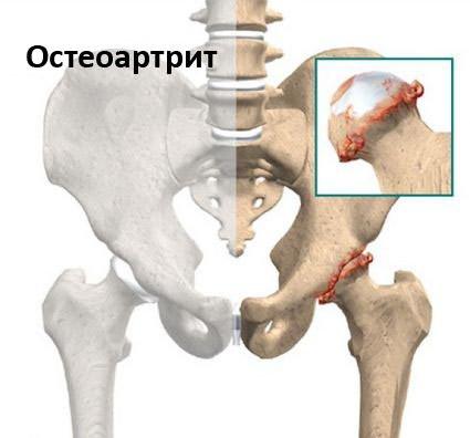 aertális ízületi fájdalmak)