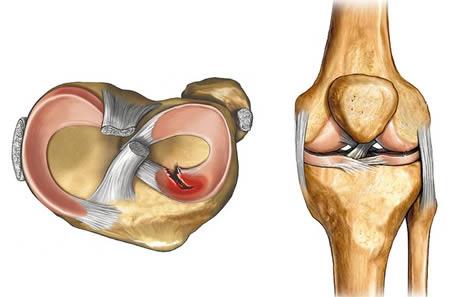 a bal térdízület deformáló artrózisa 3 fok amikor az ízületek repednek, ahogyan a betegséget nevezik