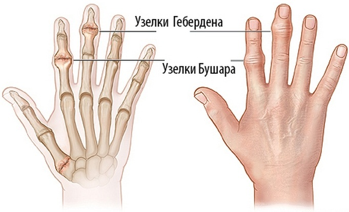 a kéz fájdalma metacarpophalangealis ízületei