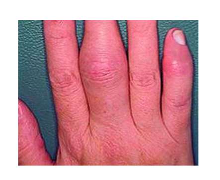 a kis ujj ízületi gyulladásának okai
