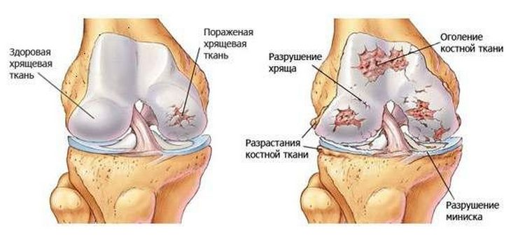 a lábak ízületei meggyulladtak, mint hogy kezeljék)