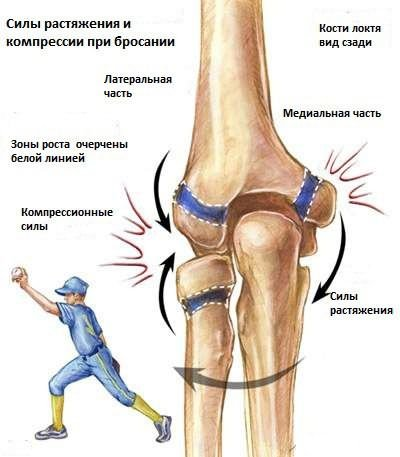 a kéz ízületeinek osteoarthritis. kezelés kézízületek gyógyszerei