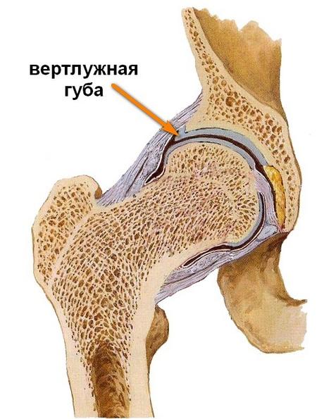 a csípőízület inak betegségei)