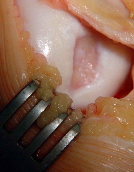 térdízület 1. fokozatának osteochondrosis reumatológus ízületi betegség
