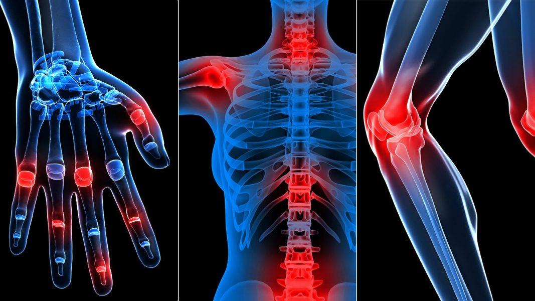 atherosclerosis ízületek fájnak ízületek mérgezik a fájdalmat