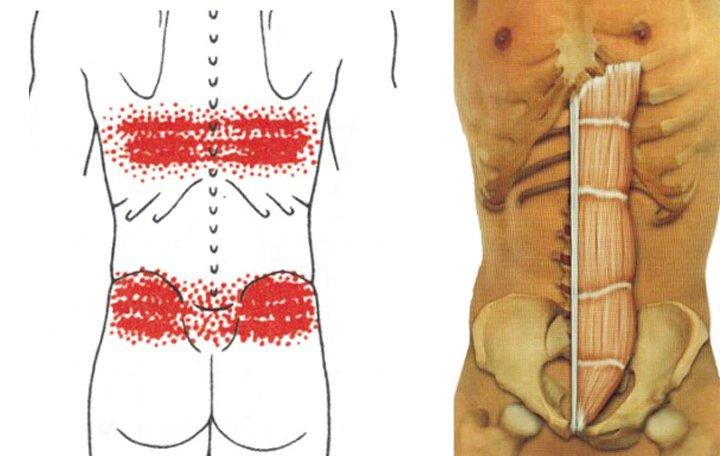 fájdalom és korlátozott mozgékonyság a vállízületben)