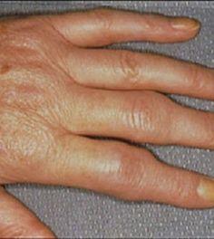 a térd ízületi gyulladásának kezelése dimexiddal