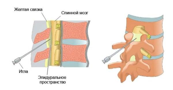 Az ágyéki csontritkulás, amelyet injektálnak. Kezelés nyaki és ágyéki osteochondrosis injekciókkal