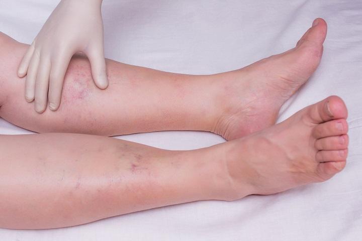fájdalom a lábakban és a csípőben)