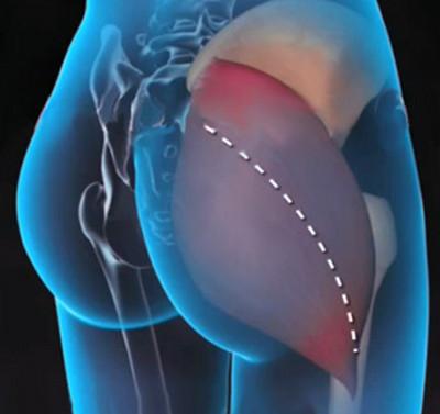 a csípőízület akut artrózisa)