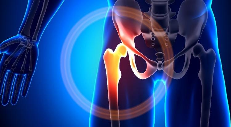Csípőfajdalom oka: izom-, vagy kopásos eredetű?