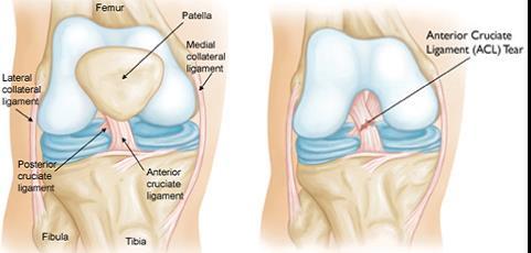 a térd radiológiai képének deformáló artrózisa