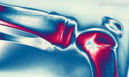 gyógyítja a rheumatoid arthritis kézízületeit)
