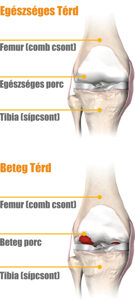 artrózis gyógykezelése