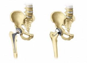 csípőízület endoprotezálása)
