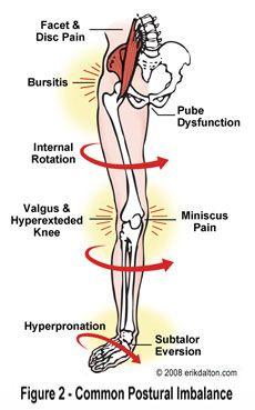 viprosil ízületi fájdalom)