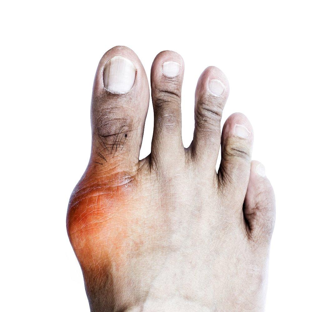hogyan lehet csökkenteni a kézízületek fájdalmát