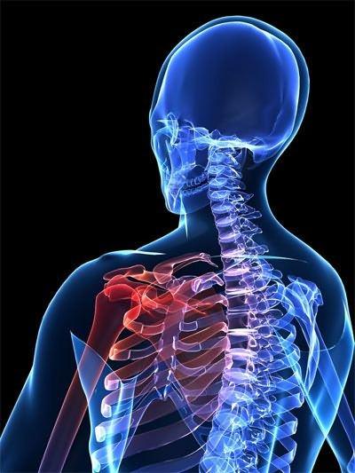 a vállízület akut artrózisának kezelése