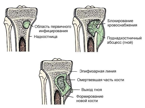 csípőízületek betegségei)