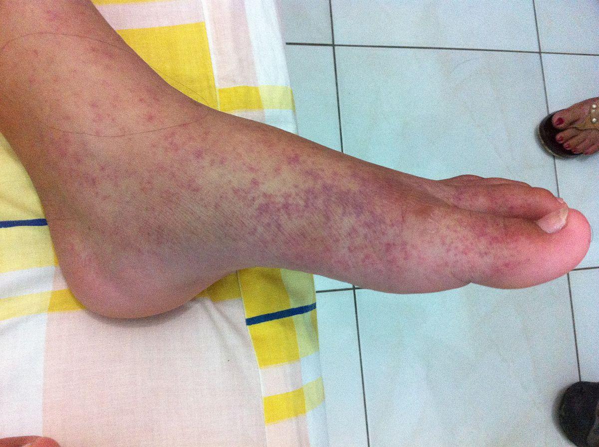 ízületi fájdalom patogenezis)