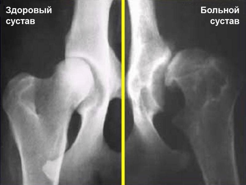 a csípőízület artrózisának kezelése injekciókkal