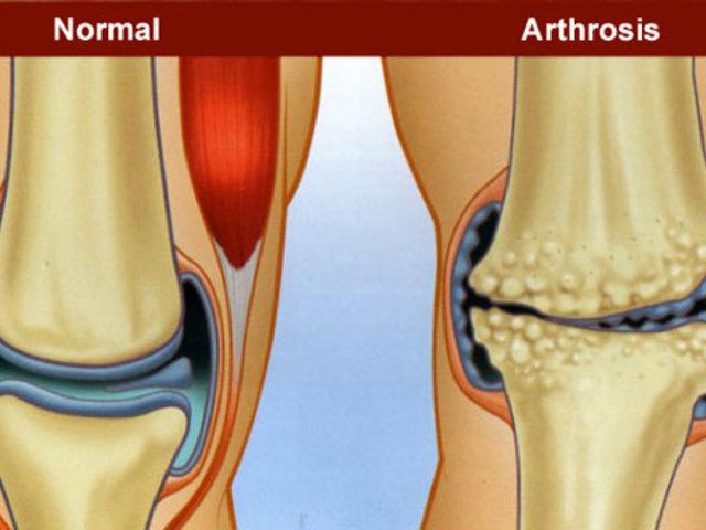 gyógyszerek komplexe az artrózis kezelésére