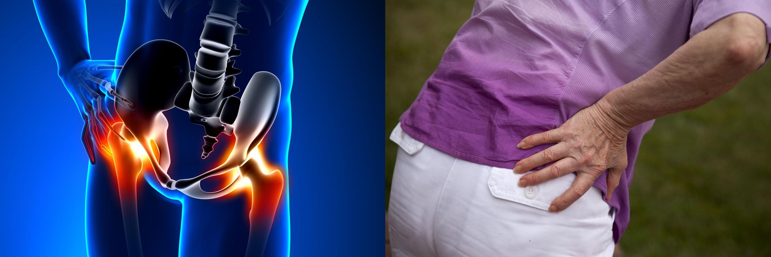 A csípőfájdalom okai és kezelése