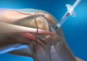 arthrosis hogyan lehet kezelni)