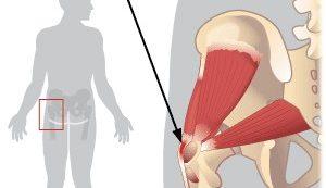 a karok kis ízületeinek gyulladása hatékony ízületi kezelések
