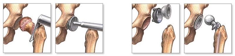 fájdalom egy hónappal a csípőpótlás után