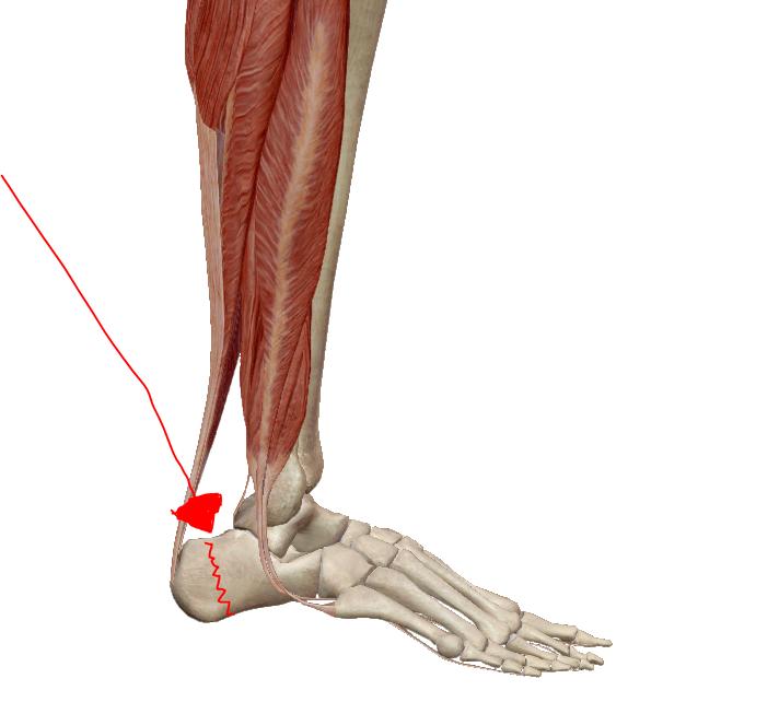 bokája fáj a futás után