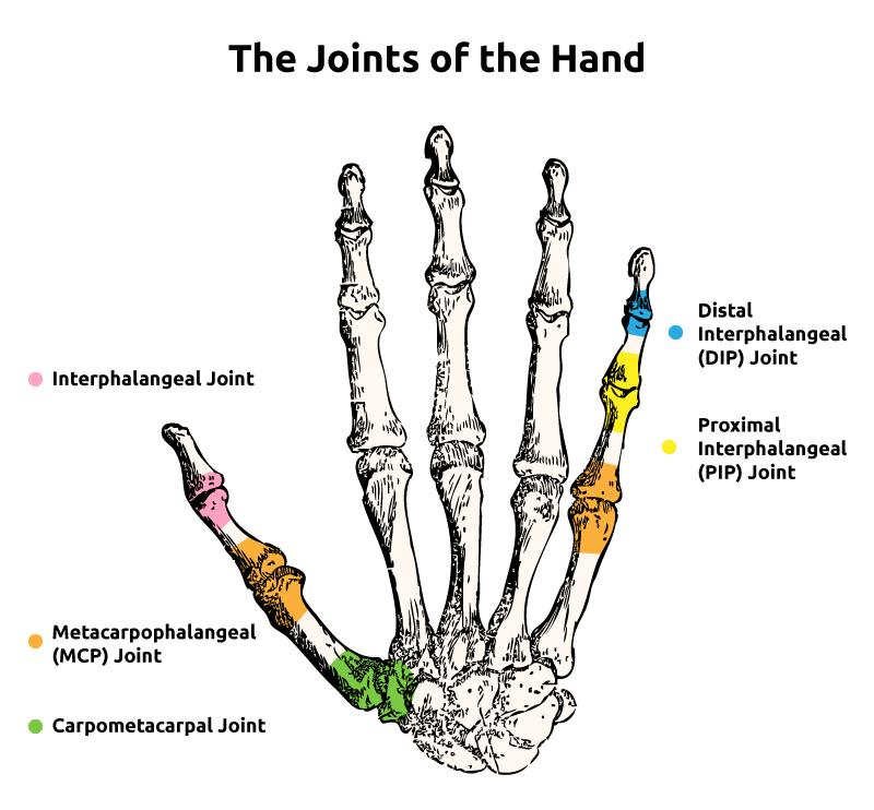 metacarpophalangealis arthrosis